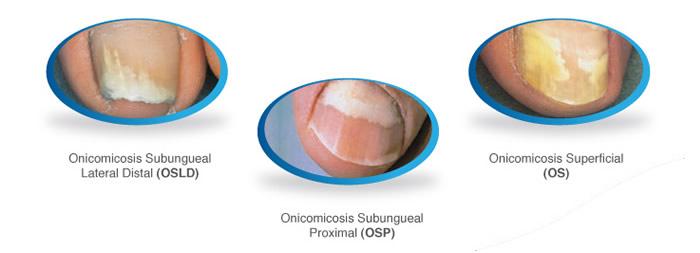 de onicomicosis estos son algunos tipos de onicomicosis más ...