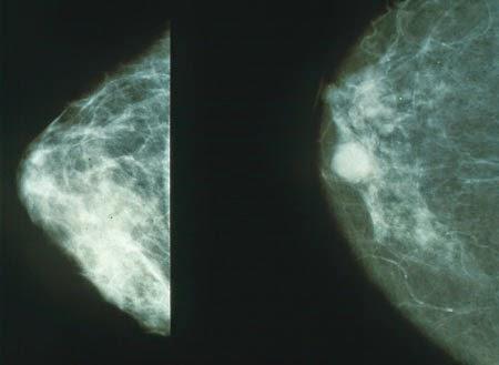 penyebab gejala kanker payudara