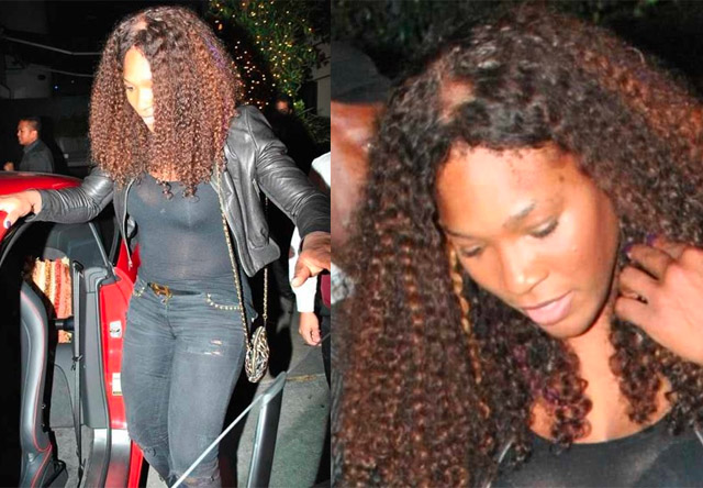 Celebrity hair nightmare naomi campbells losing hair disaster celebrity hair nightmare naomi campbells losing hair disaster has company serena williams may also suffer from alopecia thankyoumusic pmusecretfo Image collections