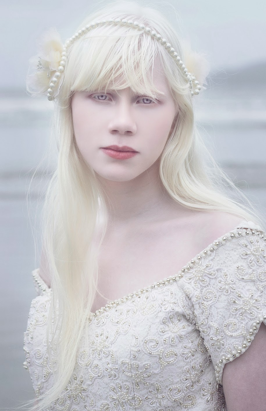 albino-pale beauty= on Pinterest : Albino Model, Albinism and Shaun ...