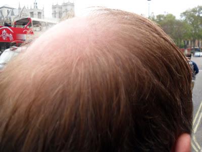 Bald Spot 2 - Opposite Big Ben