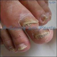 Dermatofitoses ou dermatomicoses causadas pelos dermatófitos