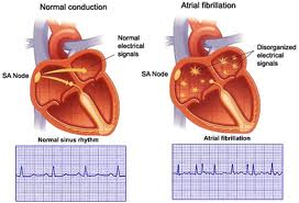 basis and treatment of cardiac arrhythmias