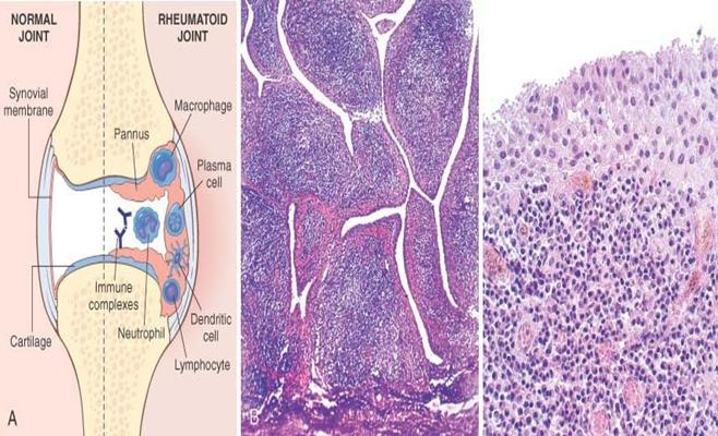 pathology of rheumatoid arthritis Genetic architecture, cellular pathology and even therapeutic  for classification  purposes, seronegative rheumatoid arthritis (ra) has become something of a.