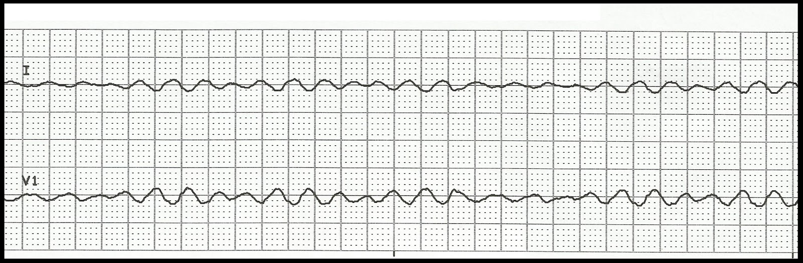 Float NurseVentricular Fibrillation Ecg