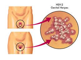 Cara Menghindari Herpes Genital