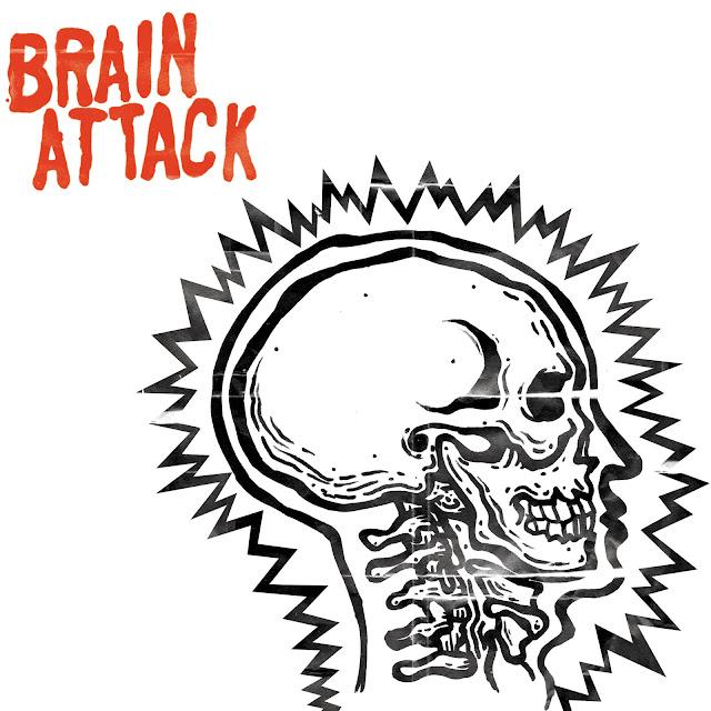 Brain Attack7