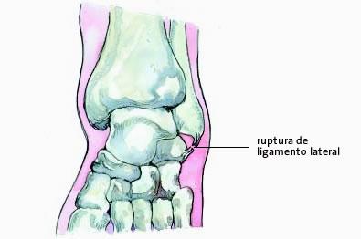 Enfermedades del sistema musculo-esquelético