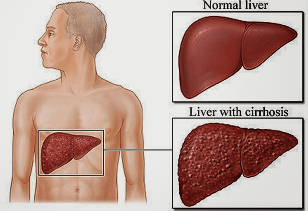 Liver Diseases   Hepatitis: Inflammation of the liver, usually caused by viruses like hepatitis A, B, and C. Hepatitis can have non-infectious causes too, including heavy drinking, drugs, allergic reactions, or obesity.  Cirrhosis: Long-term damage to the liver from any cause can lead to permanent scarring, called cirrhosis. The liver then becomes unable to function well.  Liver cancer: The most common type of liver cancer, hepatocellular carcinoma, almost always occurs after cirrhosis is present.  Liver failure: Liver failure has many causes including infection, genetic diseases, and excessive alcohol.  Ascites: As cirrhosis results, the liver leaks fluid (ascites) into the belly, which becomes distended and heavy.  Gallstones: If a gallstone becomes stuck in the bile duct draining the liver, hepatitis and bile duct infection (cholangitis) can result.  Hemochromatosis: Hemochromatosis allows iron to deposit in the liver, damaging it. The iron also deposits throughout the body, causing multiple other health problems.  Primary sclerosing cholangitis: A rare disease with unknown causes, primary sclerosing cholangitis causes inflammation and scarring in the bile ducts in the liver.  Primary biliary cirrhosis: In this rare disorder, an unclear process slowly destroys the bile ducts in the liver. Permanent liver scarring (cirrhosis) eventually develops.