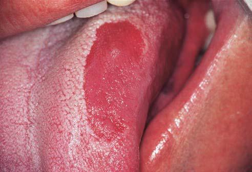 Erythematous patches causes of vertigo