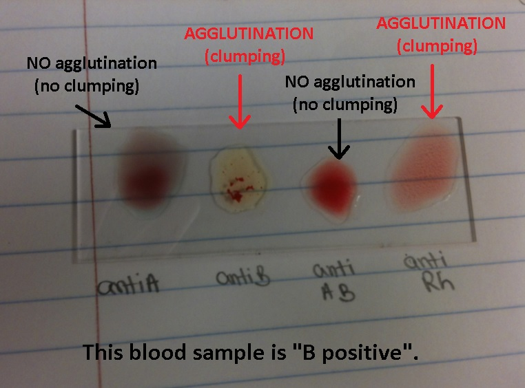 a. describe how the abo blood typing system works