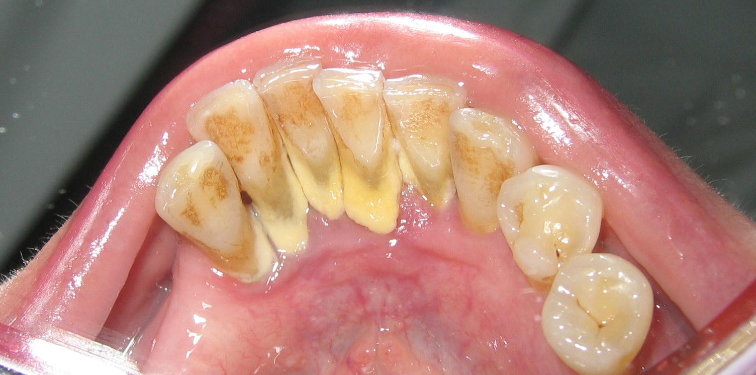 kesehatan gigi: Karang gigi/kalkulus