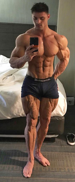 Logan's Legs