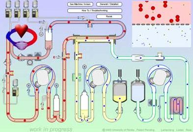 Dialysis Systems Technology