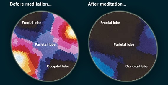 Calming Mind  Brain Waves - Before and After Meditation - 10 Simple Things You Can Do Today That Will Make You Happier, Backed By Science