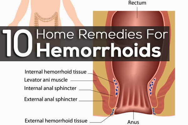 10 Actual Home Remedies For Hemorrhoids