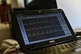 Análisis laboratorio - Ergometria - Electrocardiograma - 2015/2016