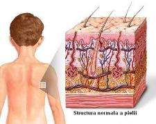 Informatii medicale despre piele si tesutul celular subcutanat