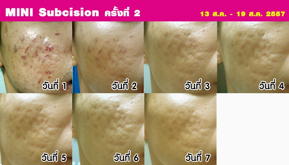 Review ทำ Mini subcision ครั้งที่ 2