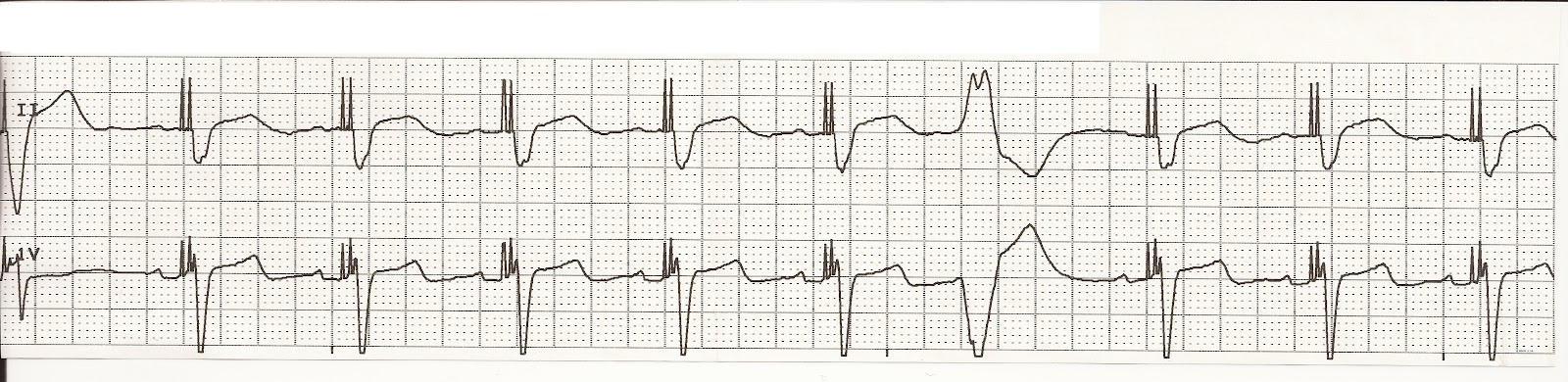 Float Nurse: EKG Rhythm Strip Quiz 56: Paced Rhythms