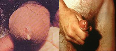 Foto Saluran Kencing Atau Penis Mengeluarkan Nanah