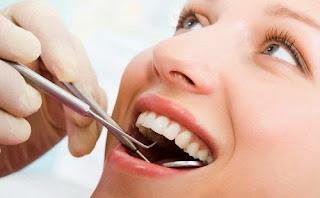 Obat Alami Sakit Gigi , Berlubang , Goyang , Racikan , Keropos , Cabut Gigi yang Bagus