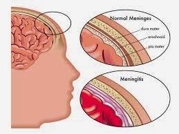 Penyakit Meningitis