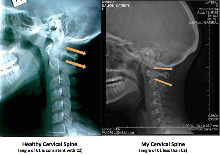 Atlanto Occipital Joint Xray