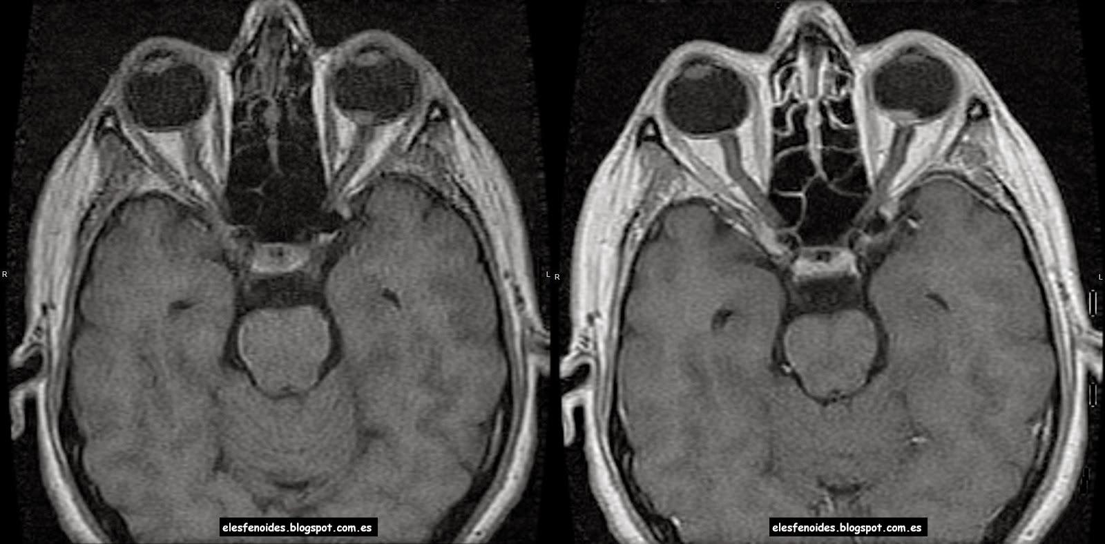 El esfenoides: Melanoma coroideo. 2 imágenes 1 caso.
