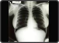curso de radiologia para fisioterapeutas