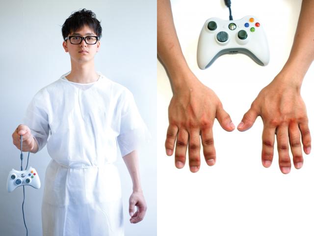 Gamer com artrite: Xbox