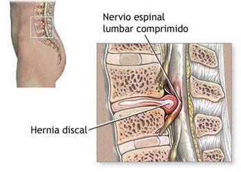 Duele fuerte la parte inferior del vientre a la izquierda y los riñones