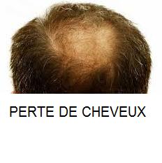Perte de cheveux se traite par les plantes médicinales