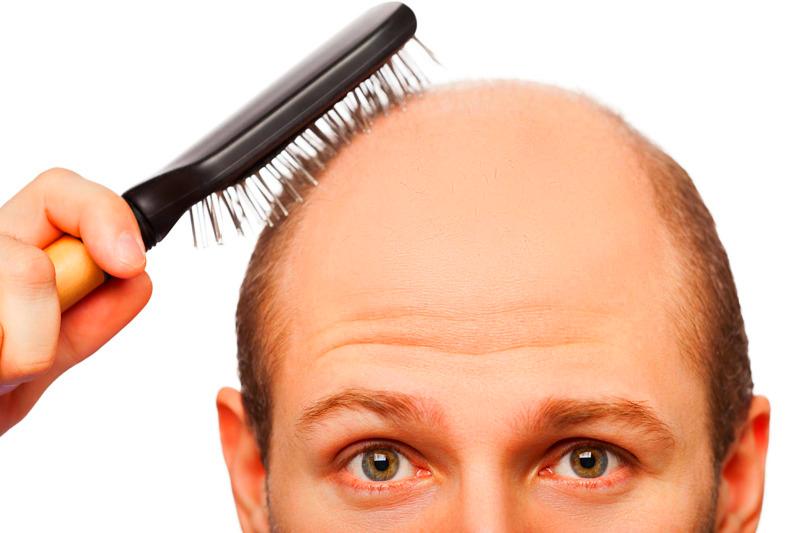 masalah rambut gugur dan botak