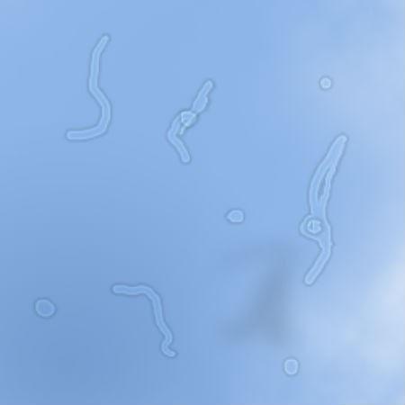 ما سر النقاط البيضاء التي تتحرك امام اعيننا عند النظر الى السماء ؟ تعرف على الإجابة