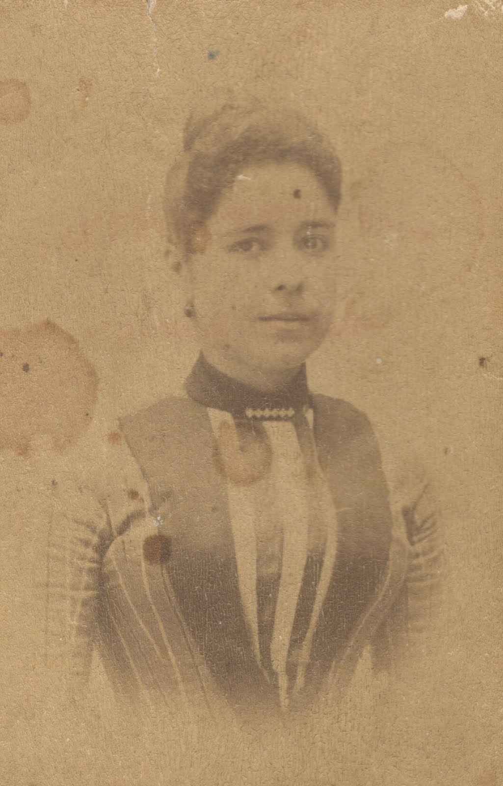 Albúmina - Hacia 1885