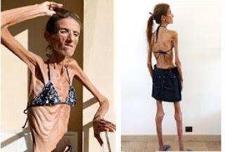 Akibat Diet  Wanita Ini Terkurus di Dunia