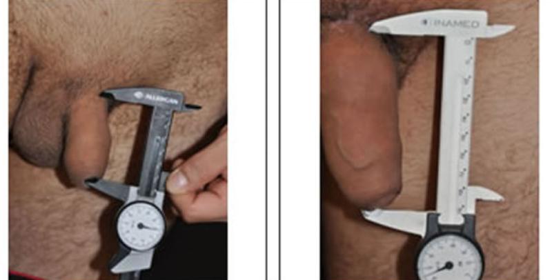 alargamiento del pene antes y despues