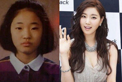 Kim Sarang Before After