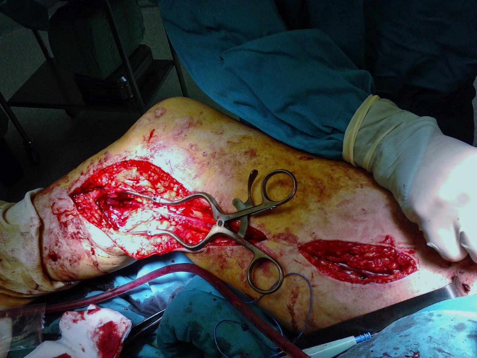 La cianosis de la piel a varikoze