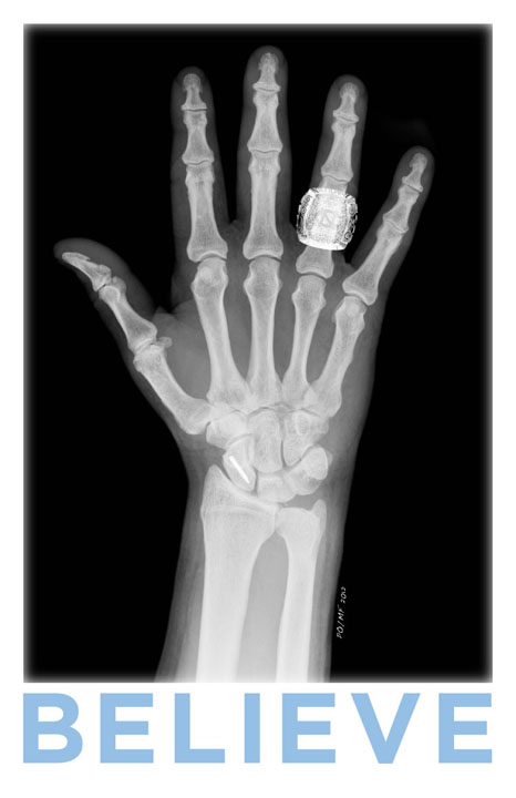 why do we care about a fractured scaphoid first and foremost because -2.bp.blogspot.com