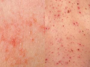 Atopichesky la dermatitis al niño 3 mes