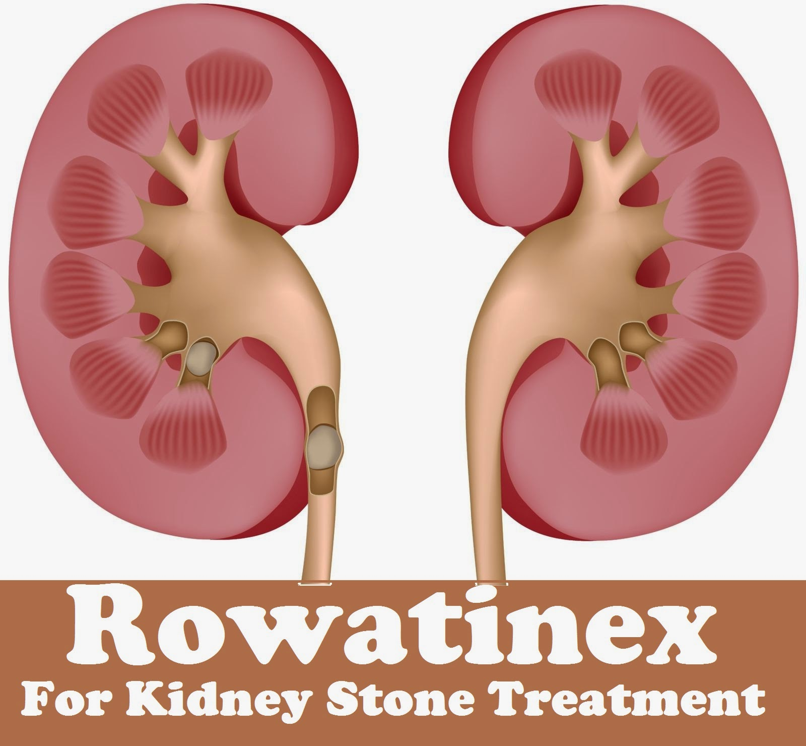Rowatinex For Kidney Stone Treatment - MediMiss