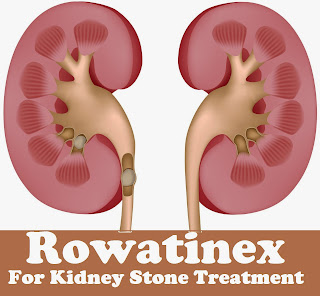 Rowatinex For Kidney Stone Treatment