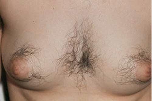 Hair Around Nipples In Women 103