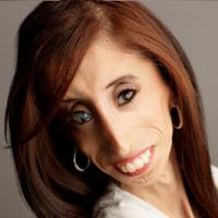"""Lizzie Velasquez nasceu com uma doença rara que faz com que seja impossível para ela ganhar peso. Alguns anos atrás, ela descobriu que sofria de bullying na internet em uma cruel votação que a elegeu como a """"mais feia na Internet."""" Ela usou isso para dar a volta por cima e passou a ter sucesso muito em vida."""