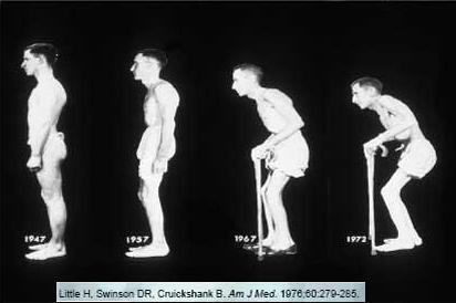 ankylosing spondylitis progression Quick Arthritis Cure Waynetown