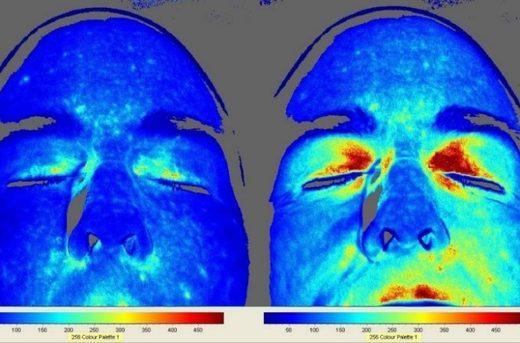 Μελέτες δείχνουν τι εκπληκτικό συμβαίνει στο ανθρώπινο σώμα όταν βαδίζουμε ξυπόλητοι