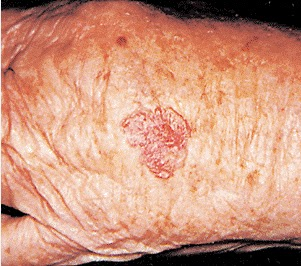 Mohs Surgery Radiation Treatment And Topical 5 Fluorouracil Cream Almost 50 Of Patients With Basal Cell Carcinoma Will Have Another Within 5 Years