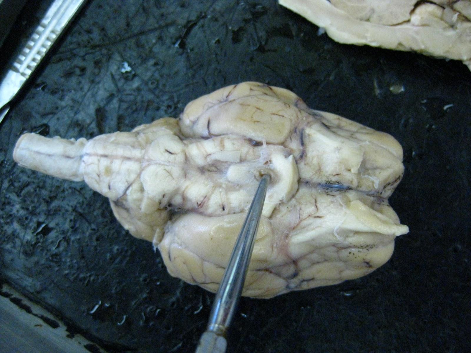 Sheep for Brains: November 2011
